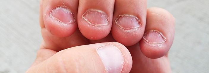 ¿Tu hijo se muerde las uñas?